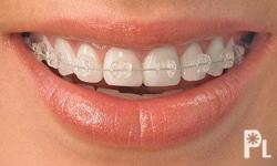 Deskripsiyon QUALITY AND AFFORDABLE DENTAL BRACES(Upper and Lower) Done by a dentist with post graduate certificate in Orthodontics and not a general practitioner. 1. Ordinary/ Traditional Metal Braces- recommended for simple to moderate cases (most